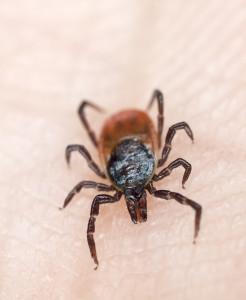 Tick crawling on human skin.